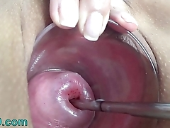 Extreme Cervix Electrosex with sound depth into Womb